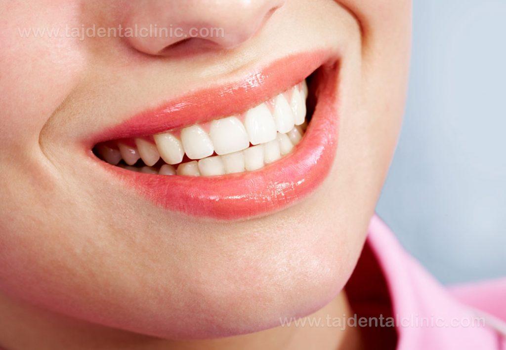 دندان دائمی