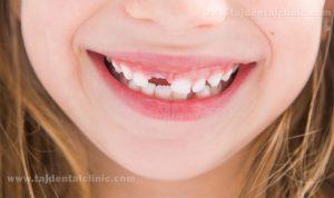 جوانه زدن دندان های دائمی
