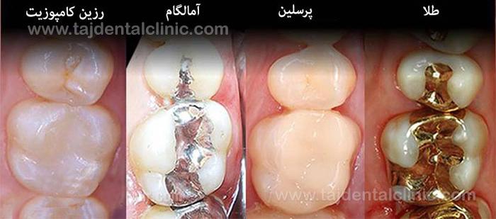 انواع پر کردن دندان شیری کودکان