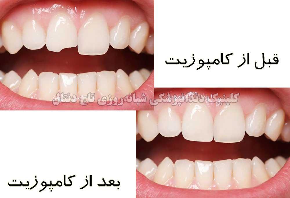 کامپوزیت زیبایی دندان جلو