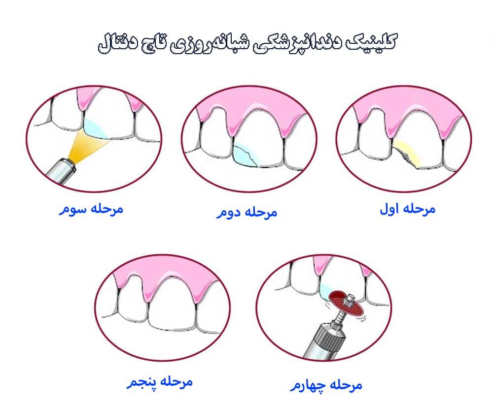 مراحل کامپوزیت کردن دندان
