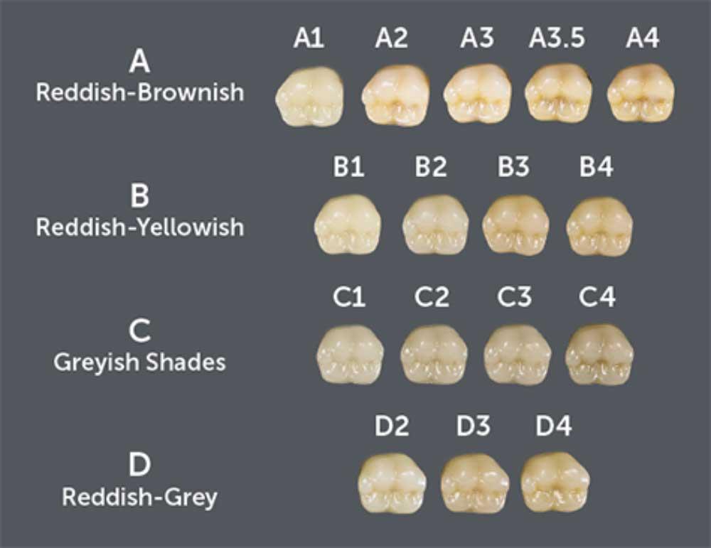 رنگ کامپوزیت دندان