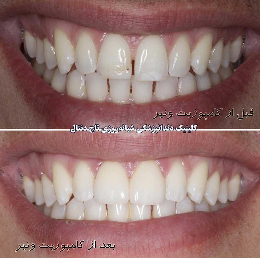 قبل و بعد از کامپوزیت ونیر دندان