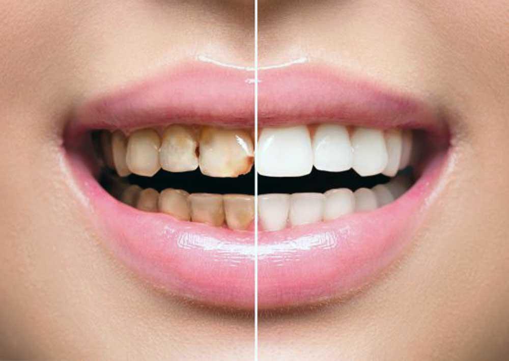 سفید کردن رنگ دندان