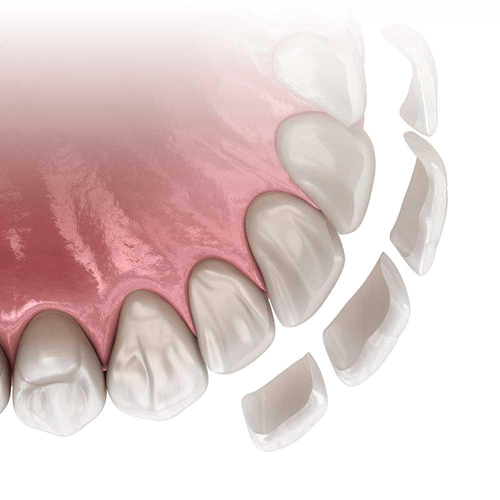 بهترین کلینیک لمینت دندان در تهران