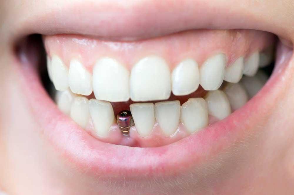 هزینه ایمپلنت دندان کلینیک