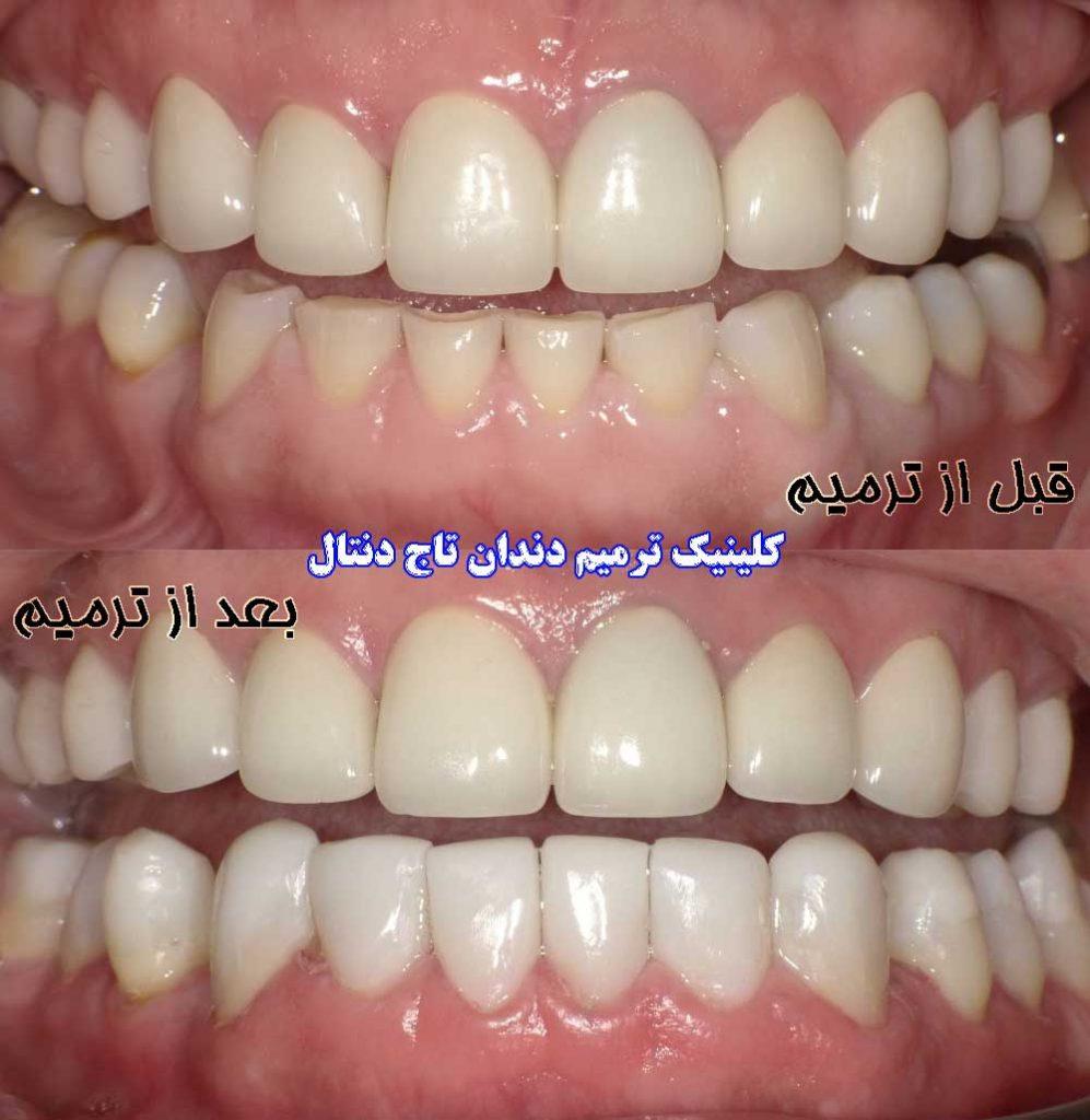 قبل و بعد از ترمیم دندان