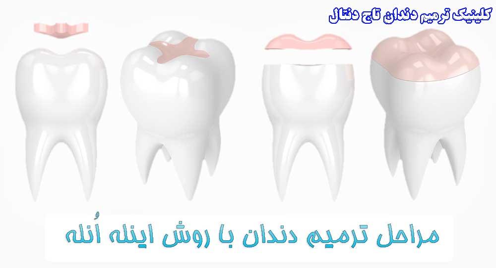 وش اینله انله در تریمی و زیبایی دندان