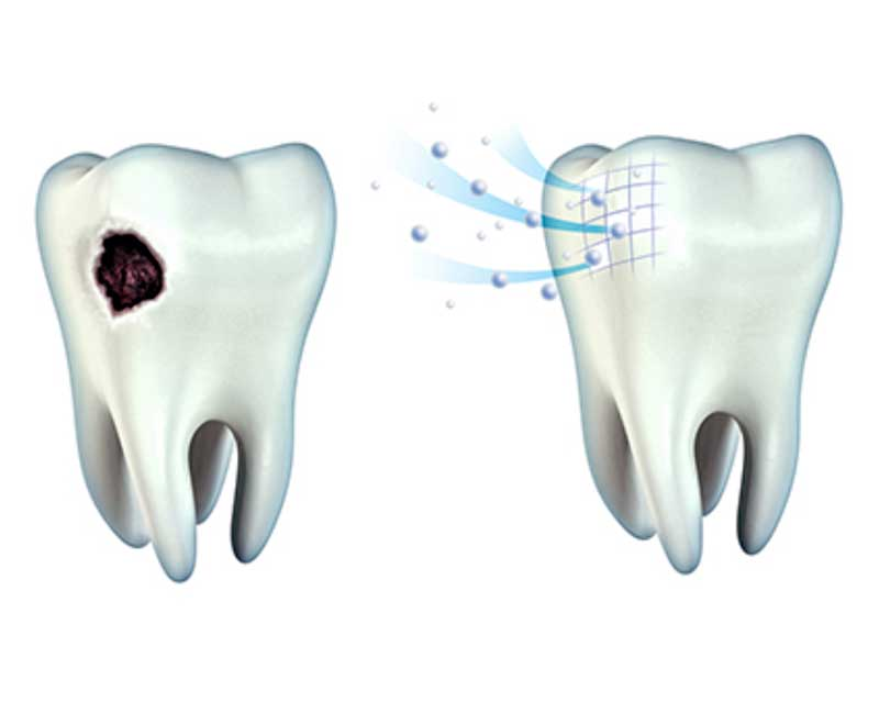 مراقبت های بعد از ترمیم دندان