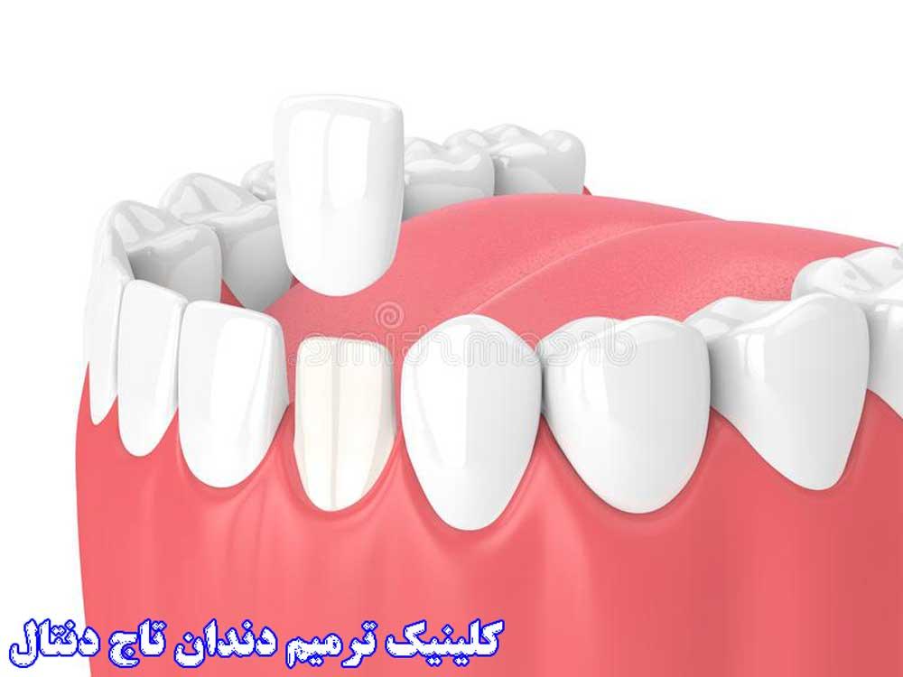 روکش ترمیمی دندان