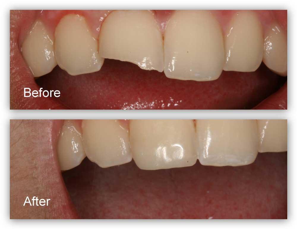 استفاده از کامپوزیت در ترمیم دندان