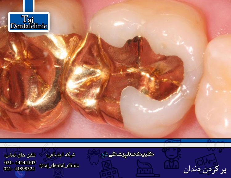 پر کردن دندان با طلا