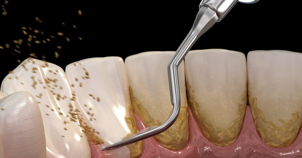 عکس جرمگیری دندان