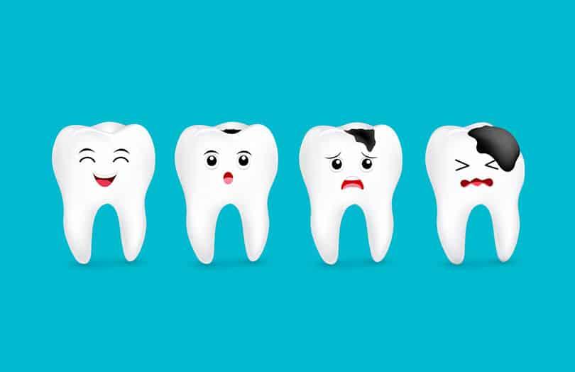 درمان پوسیدگی دندان با فلوراید تراپی